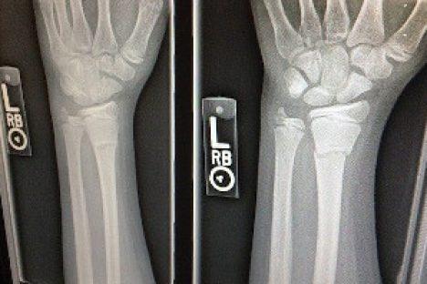 Zwei Röntgenbilder einer gebrochenen Hand